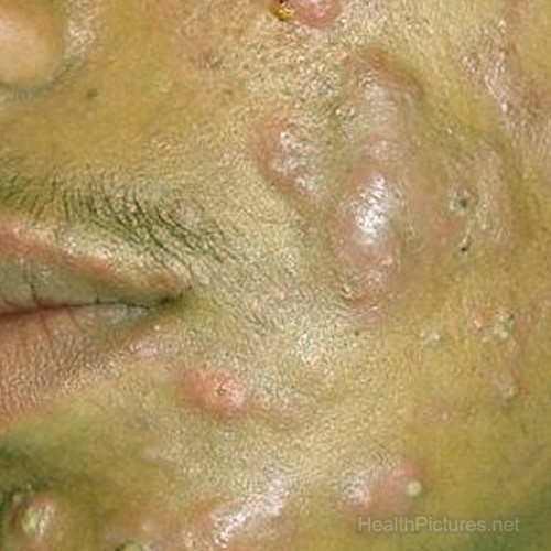 acne pictures