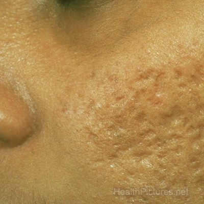 acne scars pictures