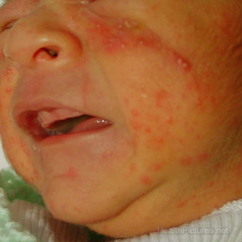 baby acne pictures
