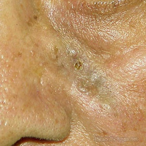 basal cell carcinoma pictures