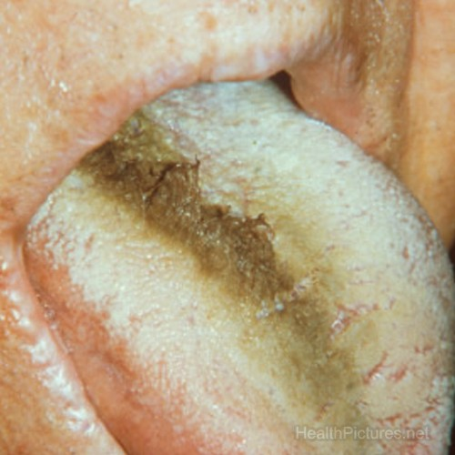 black hairy tongue pictures