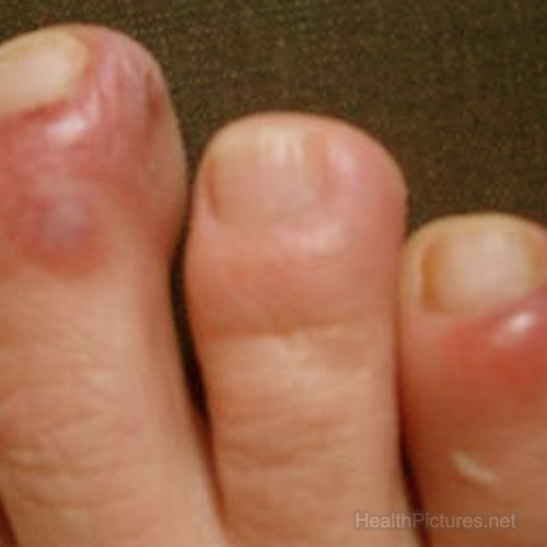the gallery for gt cellulitis finger tip