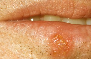 Cold Sores Pictures