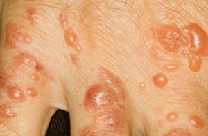 Contact Dermatitis Pictures