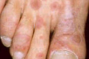Erythema Multiforme Pictures