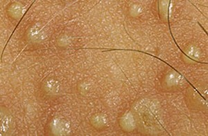 Herpes Pictures