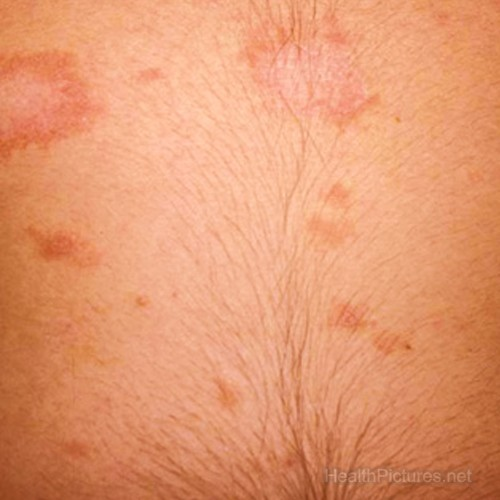 pityriasis rosea pictures