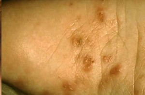 Scabies Pictures