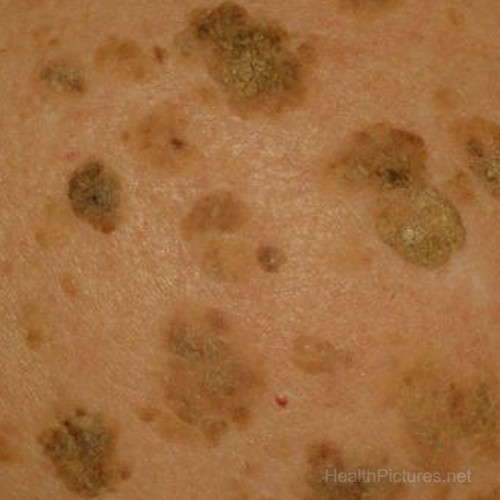 keratosis adults best seborrheic treatment