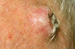 Squamous Cell Carcinoma Pictures